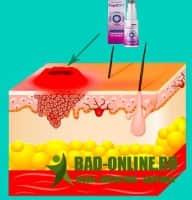 PapillOFF средство от папиллом и бородавок